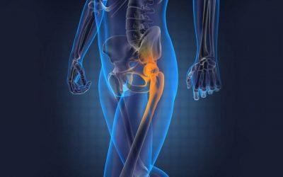 L'ostéopathie soulage la spondylarthrite ankylosante